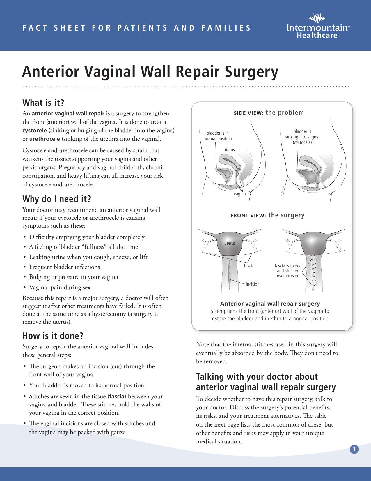 Vaginal vault repair anterior pro